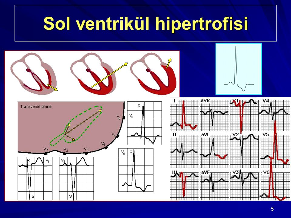 Sol ventrikül hipertrofisi