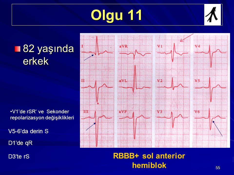 RBBB+ sol anterior hemiblok