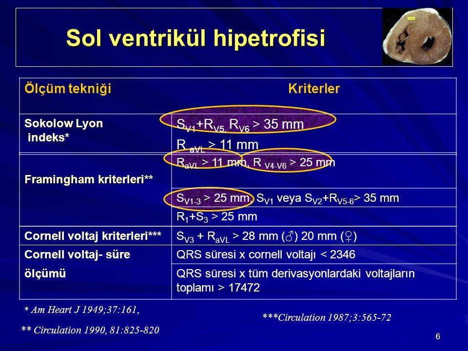 Sol ventrikül hipetrofisi