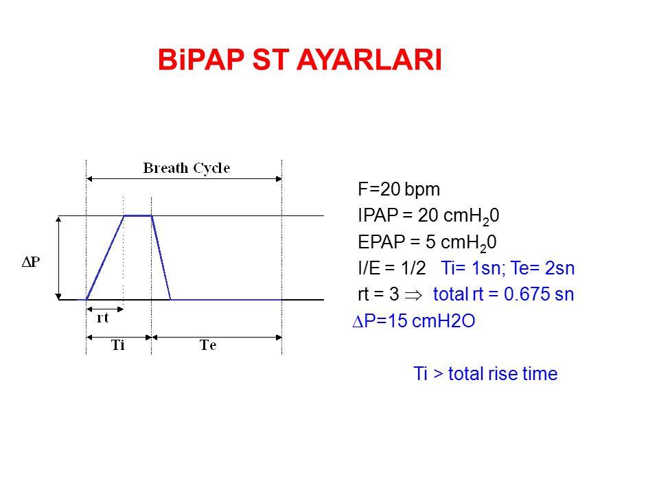 BiPAP ST AYARLARI F=20 bpm IPAP = 20 cmH20 EPAP = 5 cmH20