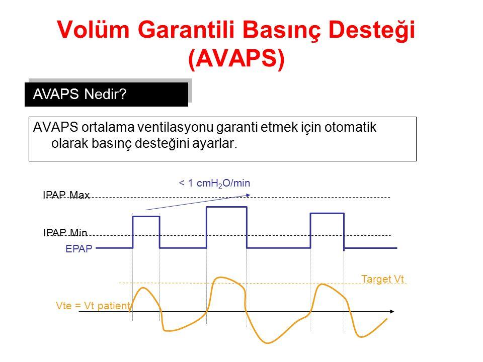 Volüm Garantili Basınç Desteği (AVAPS)