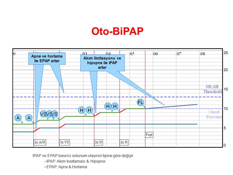 Oto-BiPAP Apne ve horlama ile EPAP artar