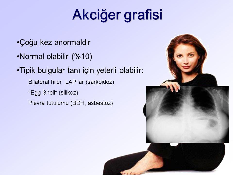 Akciğer grafisi Çoğu kez anormaldir Normal olabilir (%10)