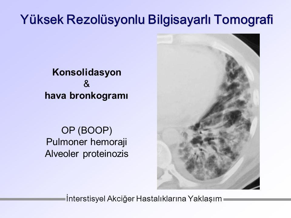 Yüksek Rezolüsyonlu Bilgisayarlı Tomografi