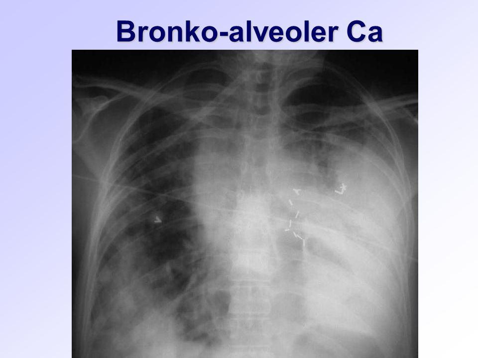 Bronko-alveoler Ca