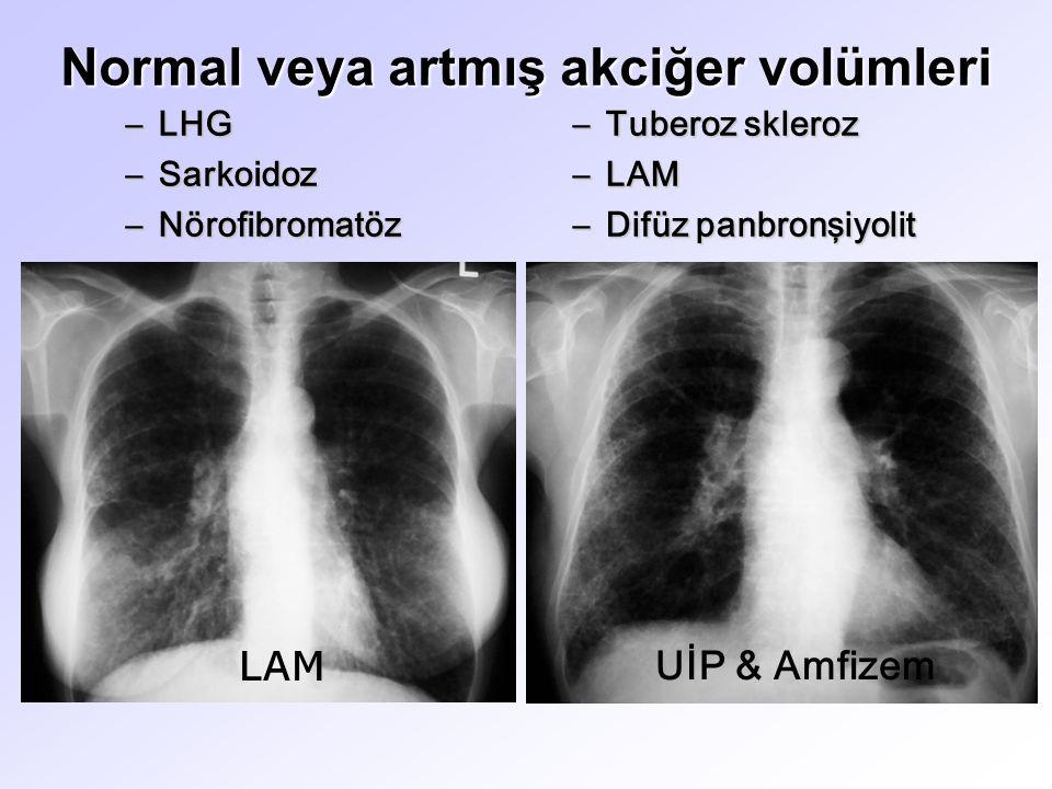 Normal veya artmış akciğer volümleri