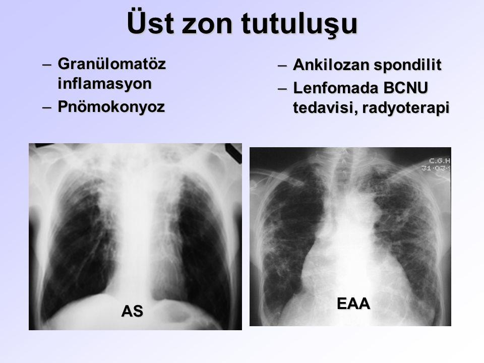 Üst zon tutuluşu Granülomatöz inflamasyon Ankilozan spondilit