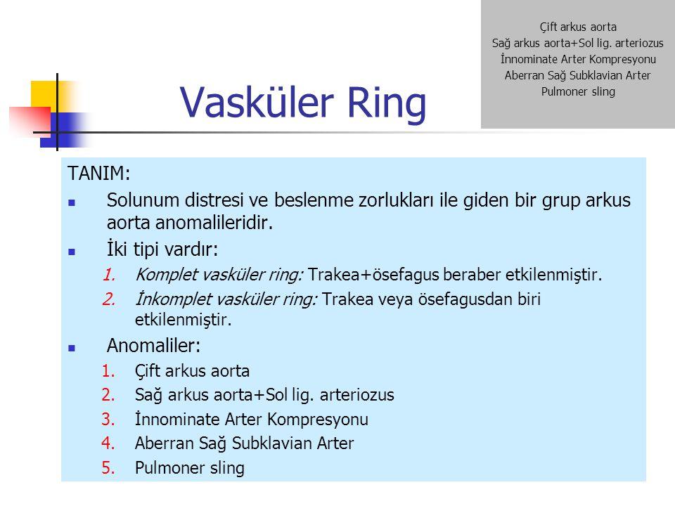 Vasküler Ring Çift arkus aorta. Sağ arkus aorta+Sol lig. arteriozus. İnnominate Arter Kompresyonu.