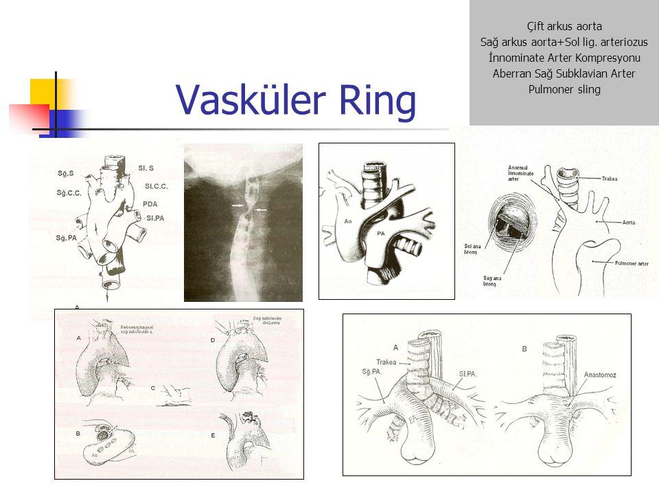 Vasküler Ring Çift arkus aorta Sağ arkus aorta+Sol lig. arteriozus