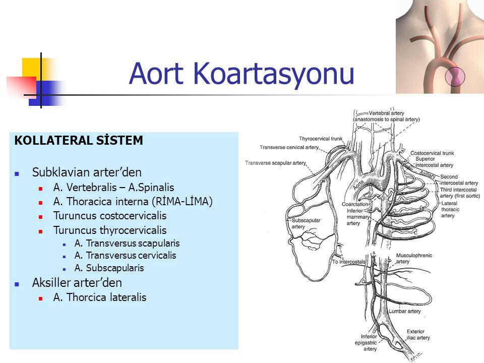 Aort Koartasyonu KOLLATERAL SİSTEM Subklavian arter'den