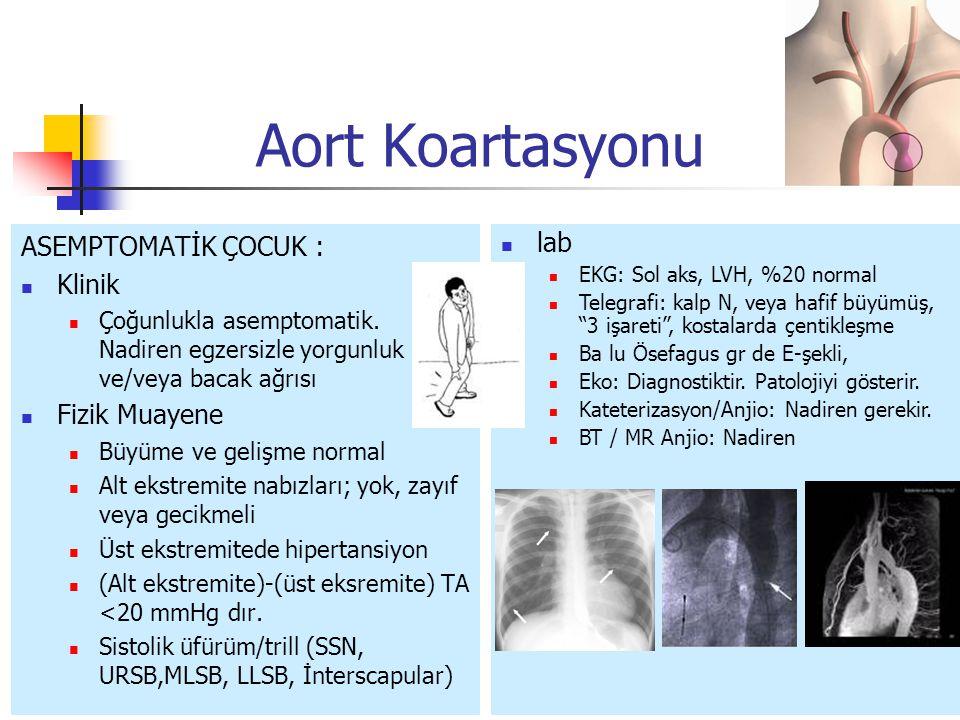 Aort Koartasyonu ASEMPTOMATİK ÇOCUK : Klinik Fizik Muayene lab