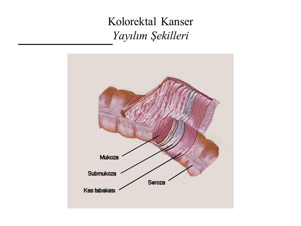 Kolorektal Kanser Yayılım Şekilleri