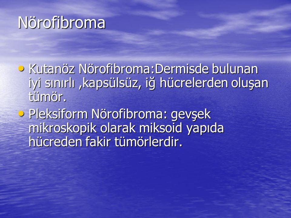 Nörofibroma Kutanöz Nörofibroma:Dermisde bulunan iyi sınırlı ,kapsülsüz, iğ hücrelerden oluşan tümör.