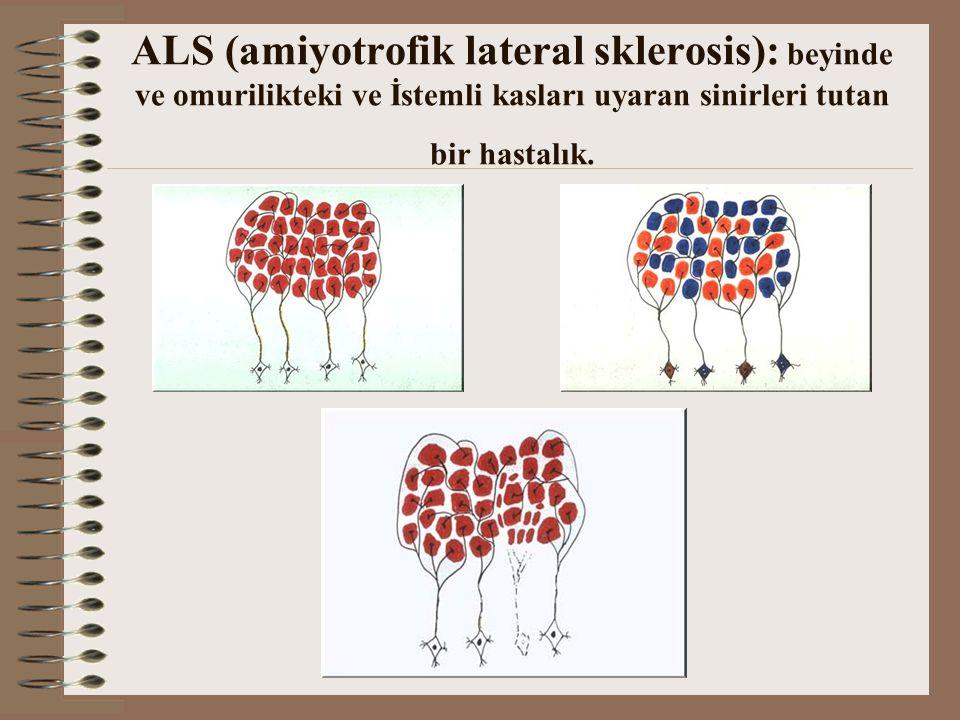 ALS (amiyotrofik lateral sklerosis): beyinde ve omurilikteki ve İstemli kasları uyaran sinirleri tutan bir hastalık.