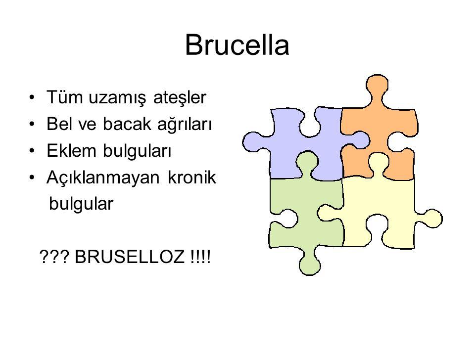 Brucella Tüm uzamış ateşler Bel ve bacak ağrıları Eklem bulguları