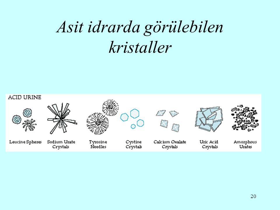Asit idrarda görülebilen kristaller