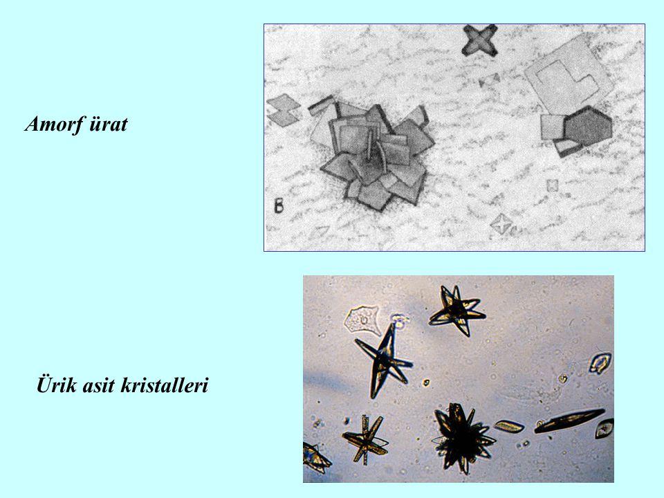 Amorf ürat Ürik asit kristalleri