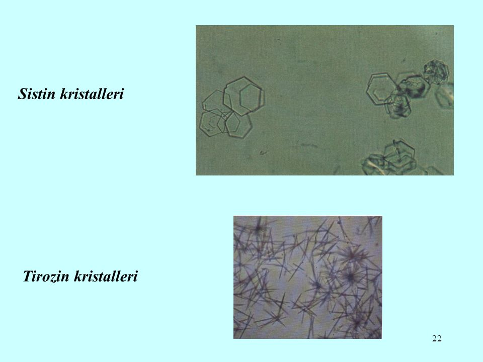 Sistin kristalleri Tirozin kristalleri