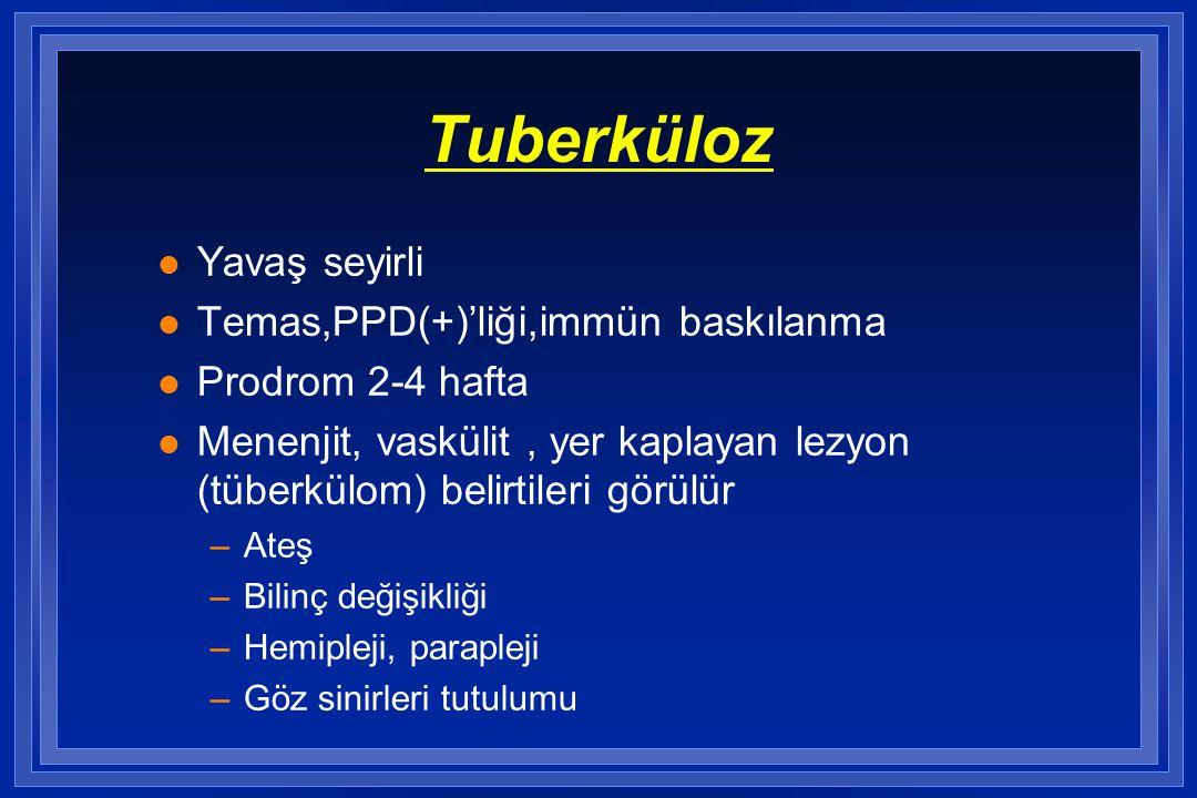 Tuberküloz Yavaş seyirli Temas,PPD(+)'liği,immün baskılanma