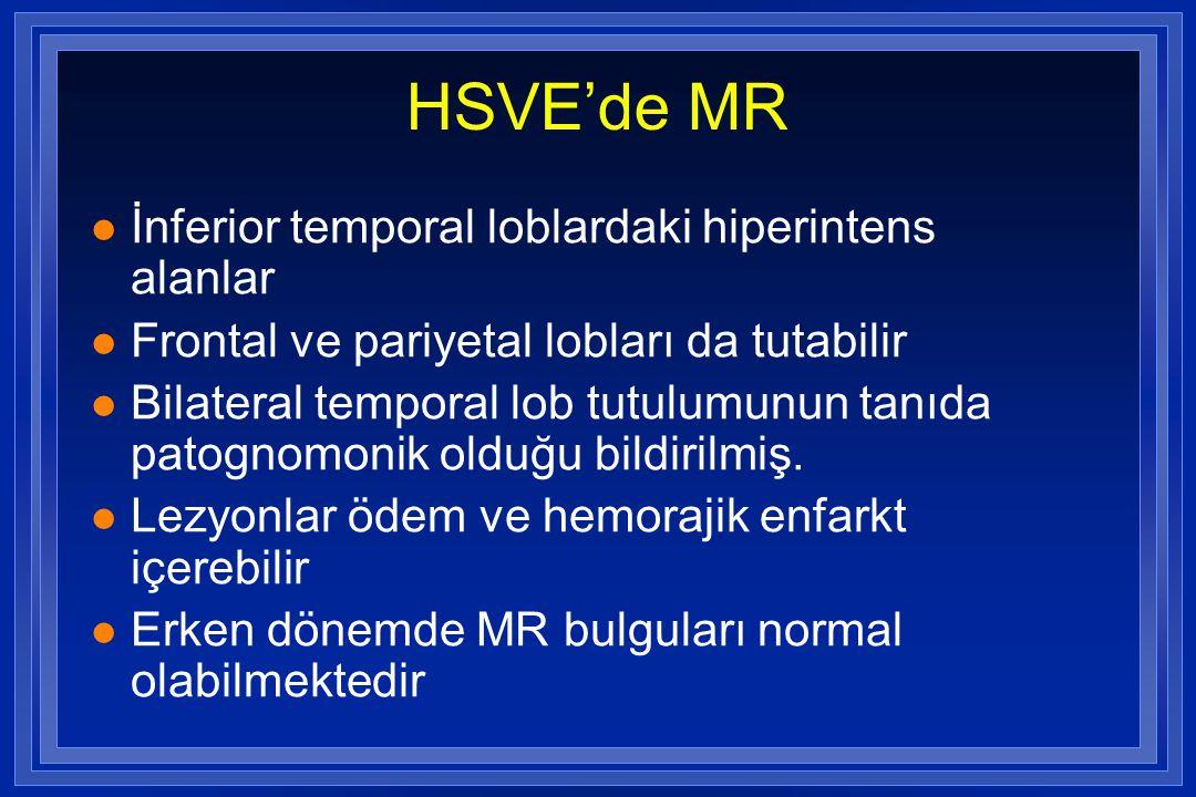 HSVE'de MR İnferior temporal loblardaki hiperintens alanlar