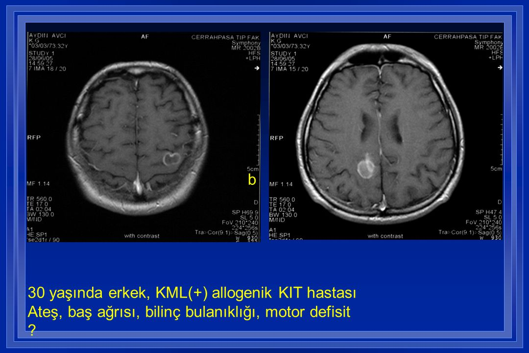 b 30 yaşında erkek, KML(+) allogenik KIT hastası Ateş, baş ağrısı, bilinç bulanıklığı, motor defisit