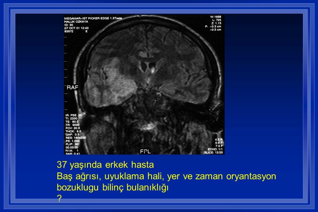 37 yaşında erkek hasta Baş ağrısı, uyuklama hali, yer ve zaman oryantasyon
