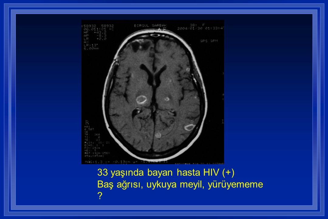 33 yaşında bayan hasta HIV (+) Baş ağrısı, uykuya meyil, yürüyememe
