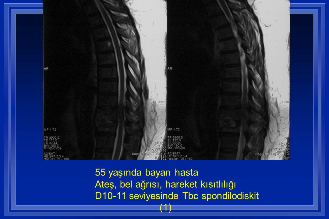 55 yaşında bayan hasta Ateş, bel ağrısı, hareket kısıtlılığı D10-11 seviyesinde Tbc spondilodiskit