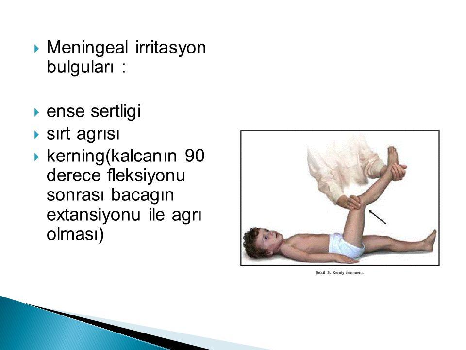 Meningeal irritasyon bulguları :