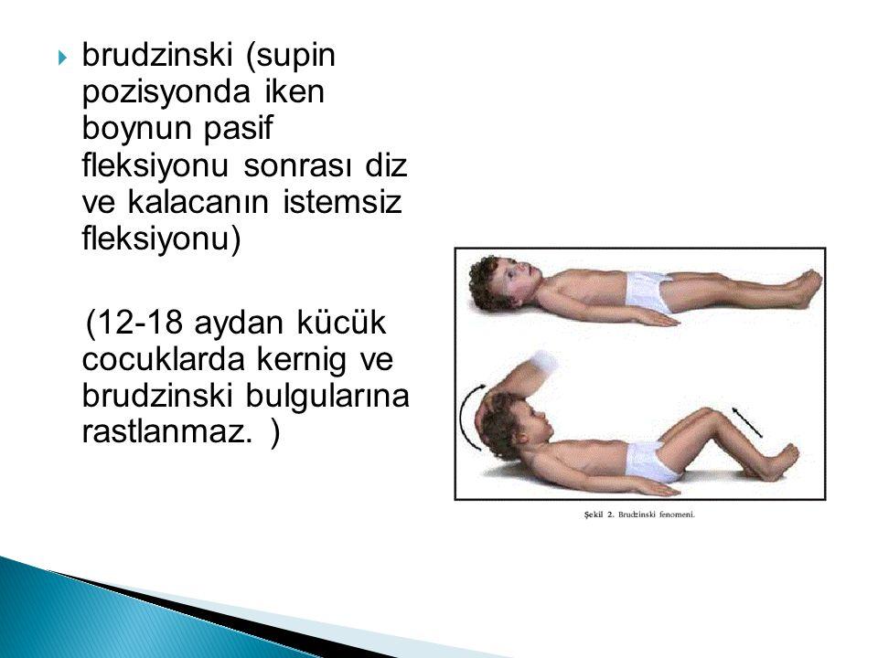 brudzinski (supin pozisyonda iken boynun pasif fleksiyonu sonrası diz ve kalacanın istemsiz fleksiyonu)