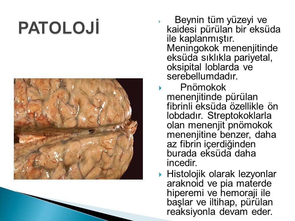 Beynin tüm yüzeyi ve kaidesi pürülan bir eksüda ile kaplanmıştır