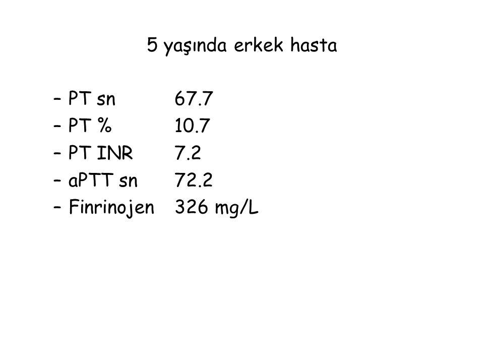 5 yaşında erkek hasta PT sn 67.7 PT % 10.7 PT INR 7.2 aPTT sn 72.2 Finrinojen 326 mg/L