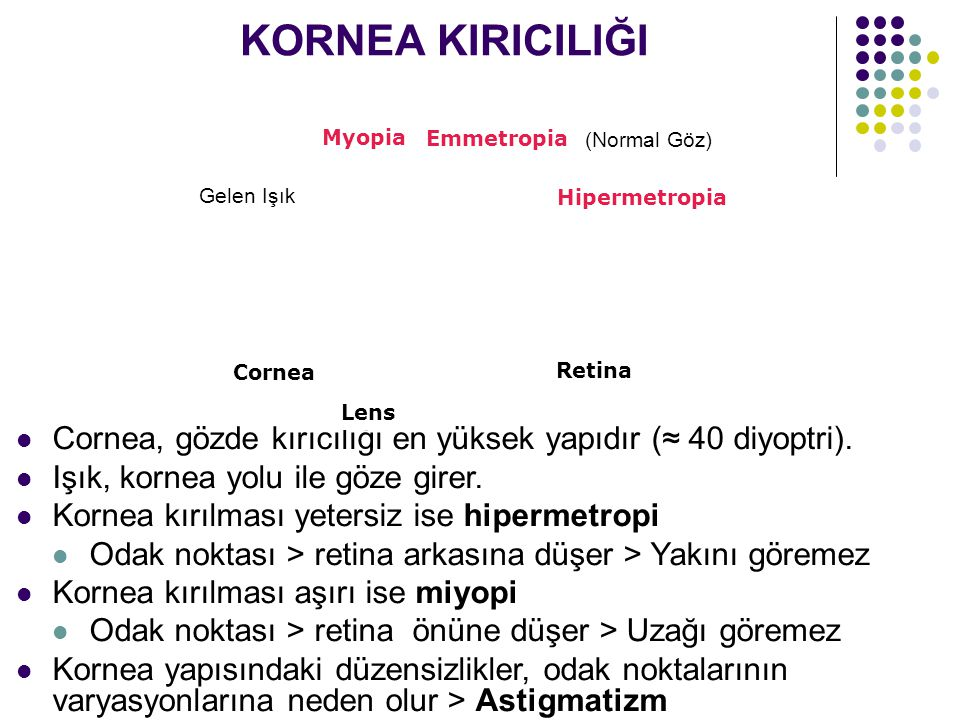 KORNEA KIRICILIĞI Myopia. Emmetropia. (Normal Göz) Gelen Işık. Hipermetropia. Cornea. Retina.