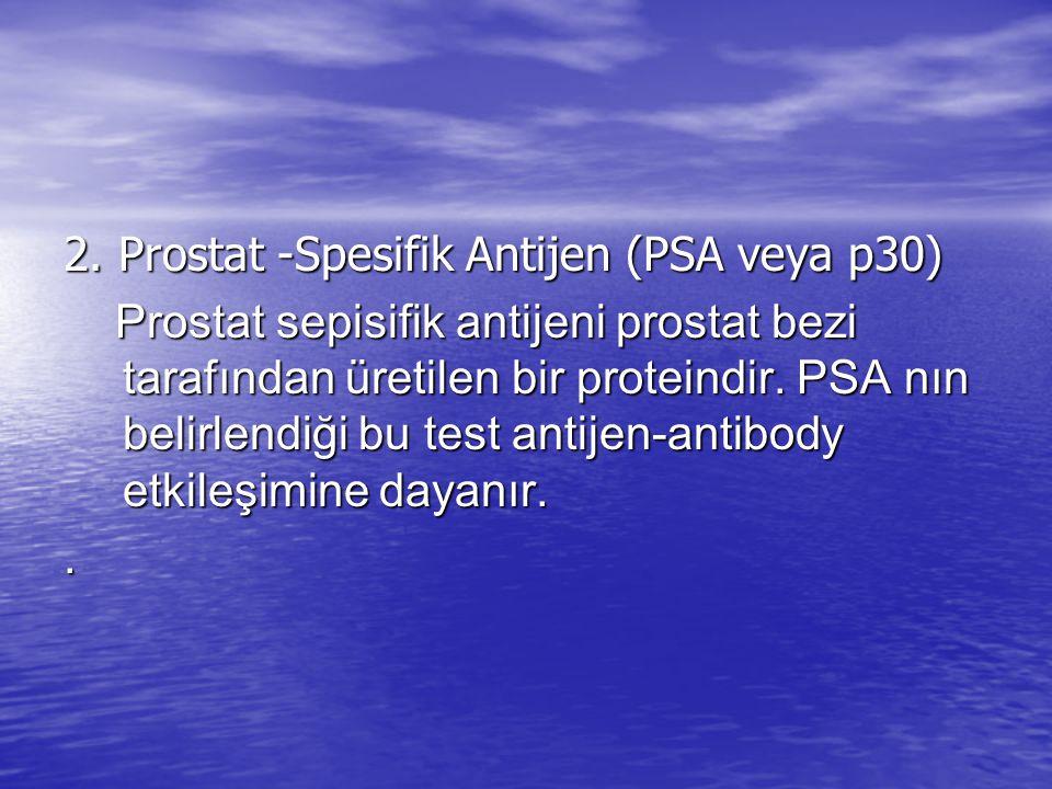 2. Prostat -Spesifik Antijen (PSA veya p30)