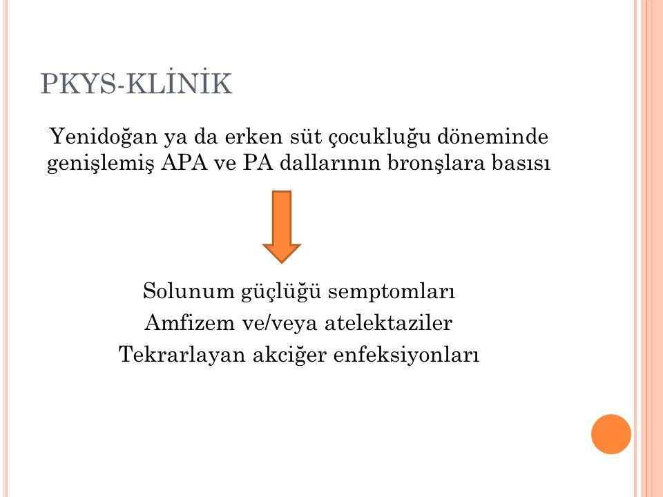 PKYS-KLİNİK Yenidoğan ya da erken süt çocukluğu döneminde genişlemiş APA ve PA dallarının bronşlara basısı.