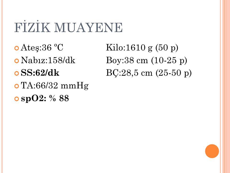 FİZİK MUAYENE Ateş:36 ºC Kilo:1610 g (50 p)