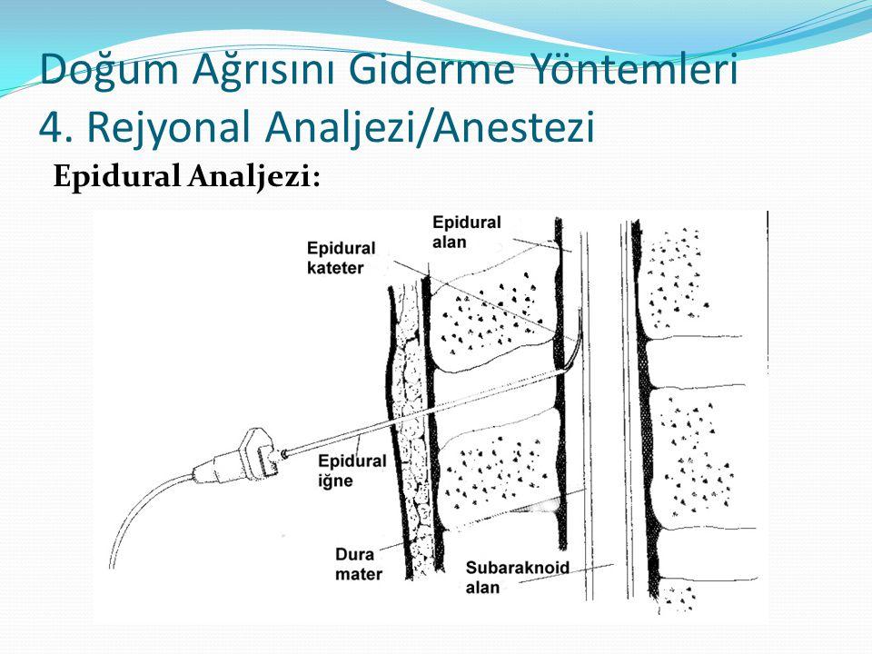 Doğum Ağrısını Giderme Yöntemleri 4. Rejyonal Analjezi/Anestezi