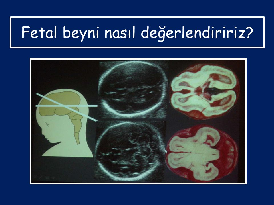 Fetal beyni nasıl değerlendiririz