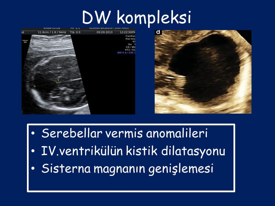 DW kompleksi Serebellar vermis anomalileri