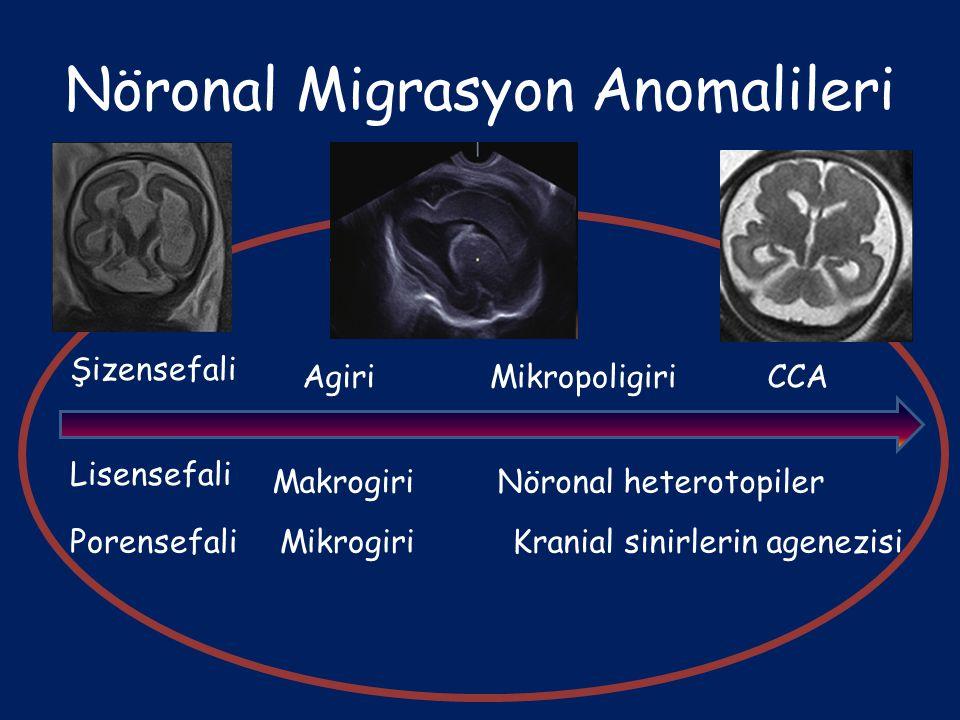 Nöronal Migrasyon Anomalileri