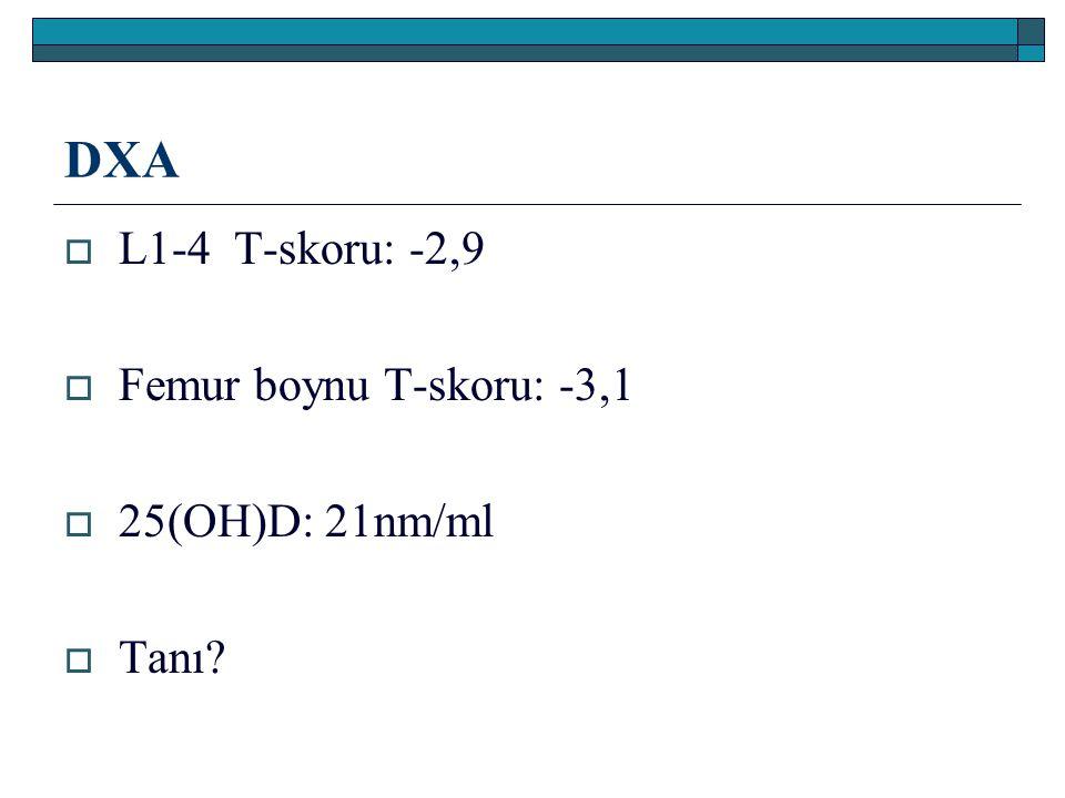 DXA L1-4 T-skoru: -2,9 Femur boynu T-skoru: -3,1 25(OH)D: 21nm/ml