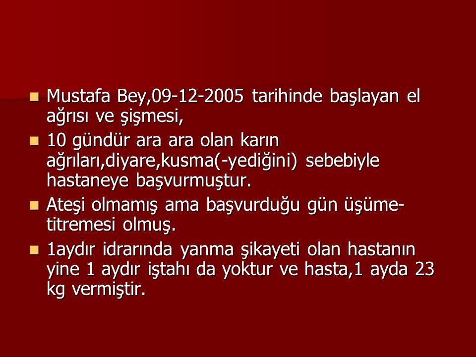 Mustafa Bey,09-12-2005 tarihinde başlayan el ağrısı ve şişmesi,