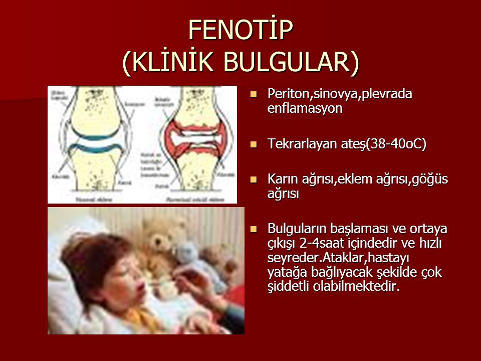FENOTİP (KLİNİK BULGULAR)