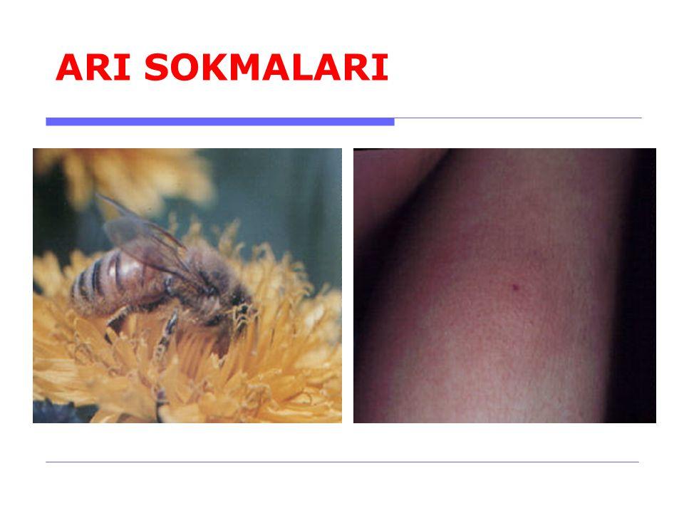 ARI SOKMALARI 8