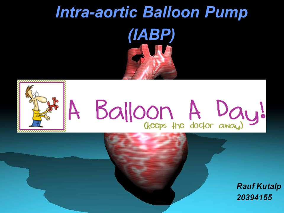 Intra-aortic Balloon Pump