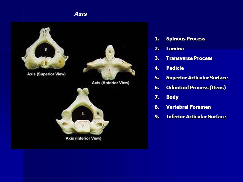 Axis 1. Spinous Process 2. Lamina 3. Transverse Process 4. Pedicle 5.