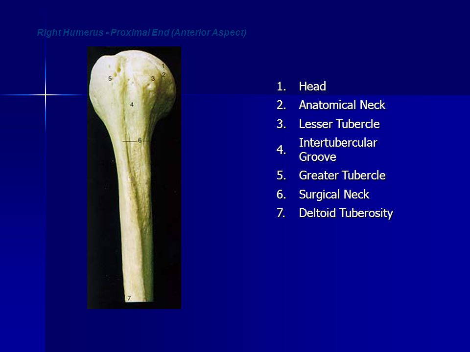 Right Humerus - Proximal End (Anterior Aspect)