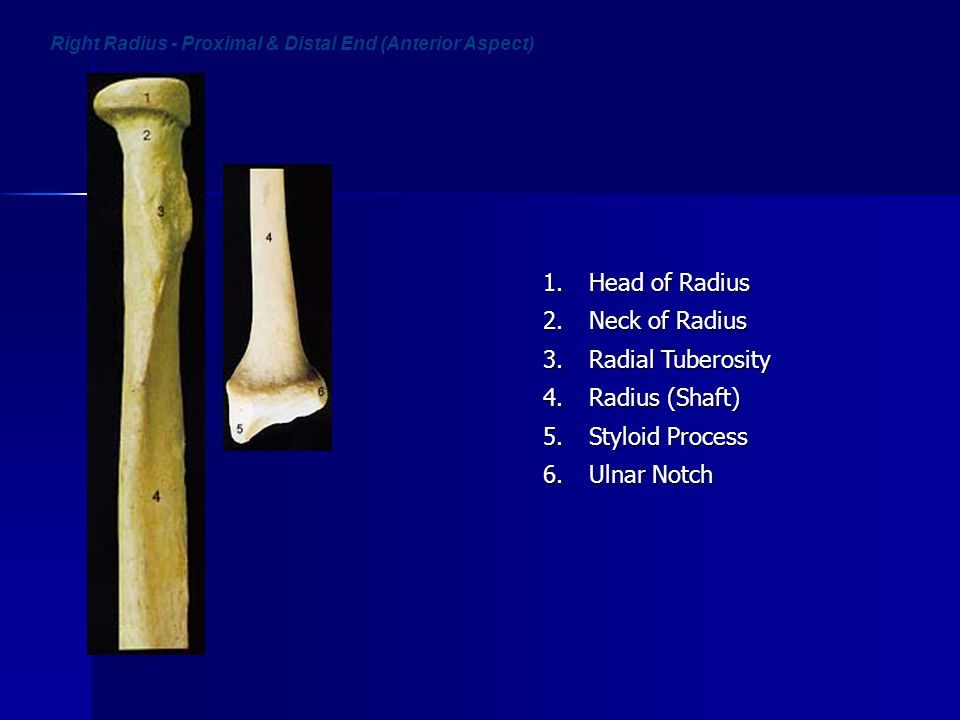 Right Radius - Proximal & Distal End (Anterior Aspect)