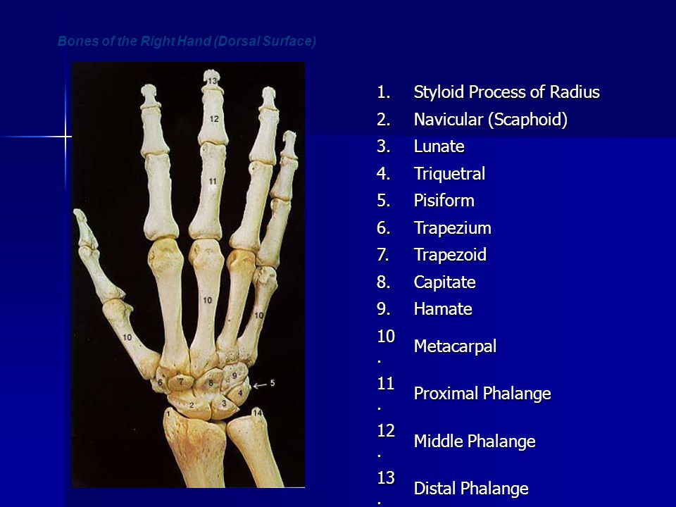 Bones of the Right Hand (Dorsal Surface)