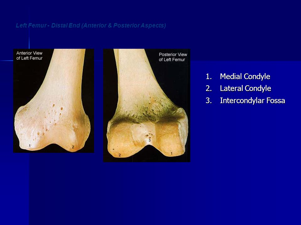 Left Femur - Distal End (Anterior & Posterior Aspects)